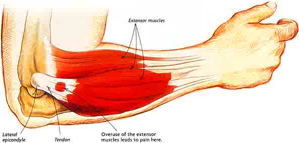 Lateral Epicondylitis (Tennis Elbow) Size, Industry Analysis & Forecast Report 2019