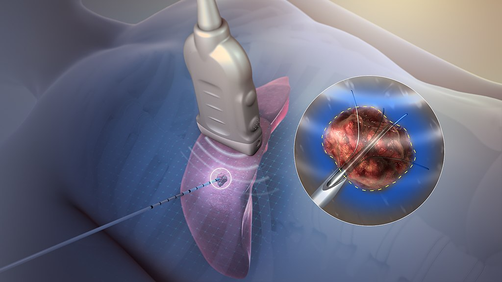 Tumor Ablation Size, Industry Analysis & Forecast Report 2019