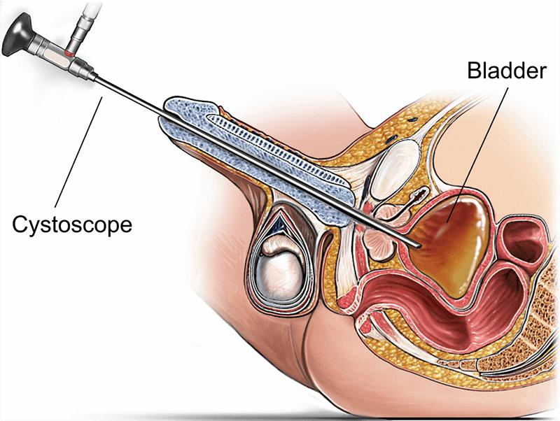 Cystoscopy Market Analysis By Technology, Application, End-use, Product & Service, And Segment Forecasts, 2018 To 2023