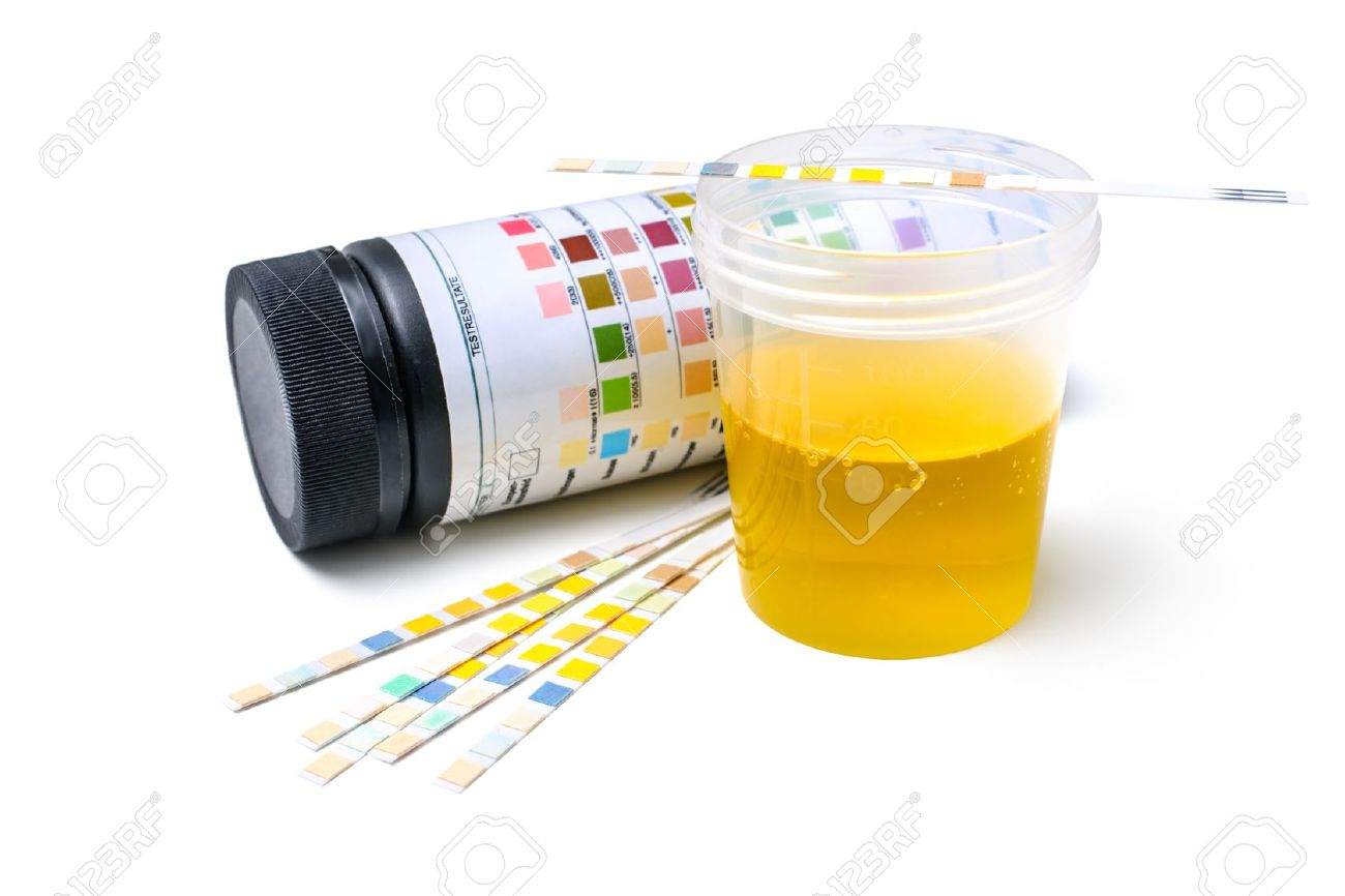 Global Point of Care Urinalysis Testing Market Size, Share Growth Trend and Forecast 2024