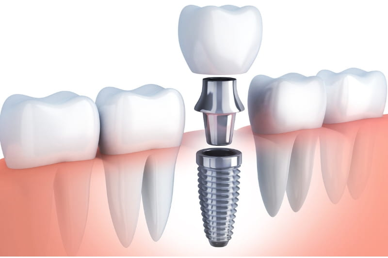 Global Dental Implant Market Size, Share, Trends, Opportunities, Brand Shares to Reach US$ 4956.3 million Value by 2024 at a CAGR of 6.5%