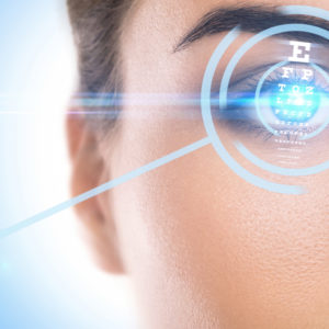 LASIK Eye Surgery 20