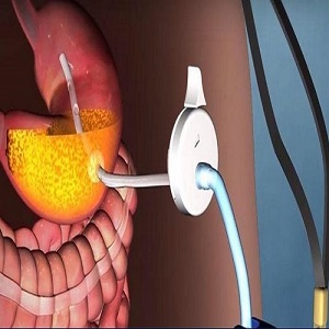 Bariatric Surgery Devices Market Research Report, Size, Share, Trends and Forecast to 2025