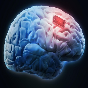 Brain Implants Market Report 2021-26: Trends, Scope, Demand, Opportunity and Forecast